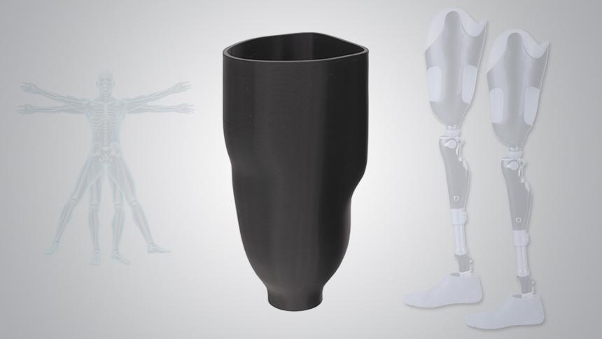 Personalization-Leg-Prosthetic1